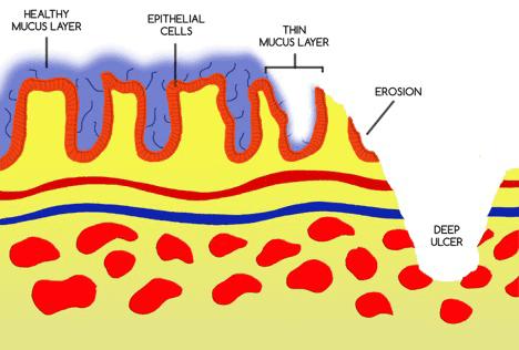 Mucus Layer